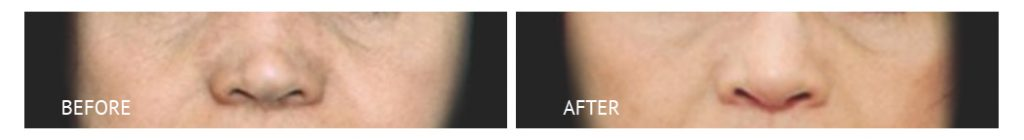 best cost rhinoplasty bone reconstruction philippines before and after
