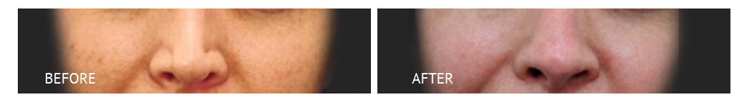 best cost nose job philippines before and after
