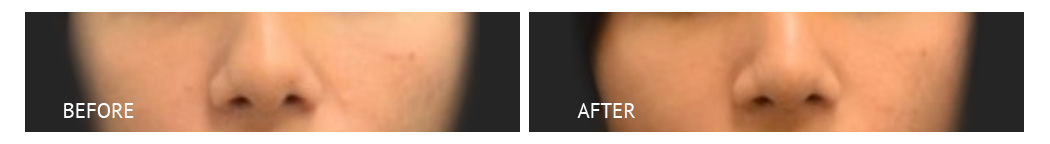rhinoplasty bone reconstruction before and after