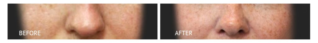 best cost rhinoplasty with silicon implants philippines before and after