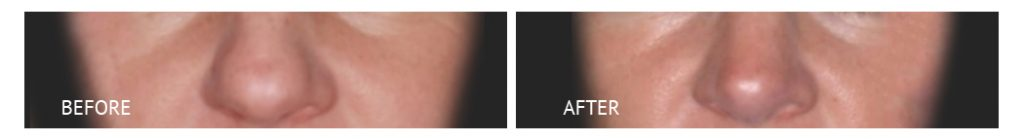 best cost rhinoplasty with goretex implants philippines before and after