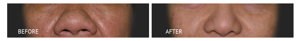 best cost rhinoplasty infracture philippines before and after
