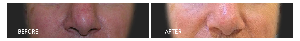 rhinoplasty with goretex implants before and after