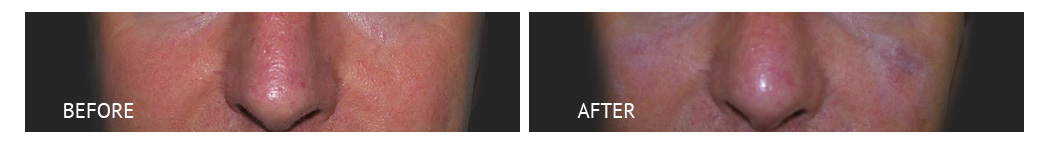 best cost nose lift philippines before and after 3