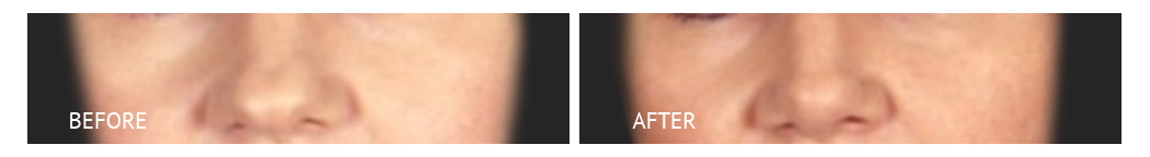 rhinoplasty with silicon implants before and after