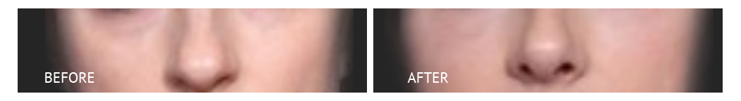 bet cost nose job philippines before and after