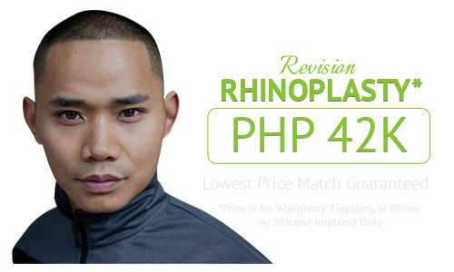 Revision Rhinoplasty Cost Philippines