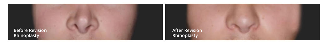 rhinoplasty infracture before and after