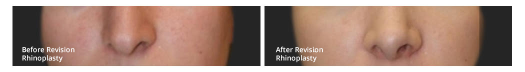 rhinoplasty with ear cartilage graft before and after